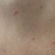コロナワクチン後に全身に虫刺されのような発疹が出た話